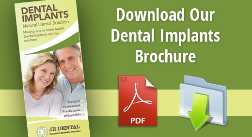 dental implants brochure