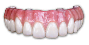 Permanent Full Zirconia Arch