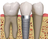 Dental Implants in Jacksonville, FL