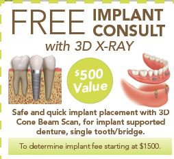implant picture and 500 off