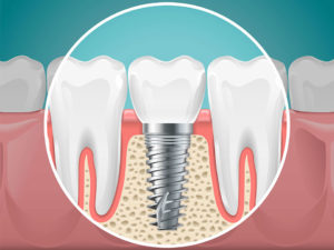 Jacksonville, FL Dental Implant